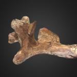 Vertebra Cervical